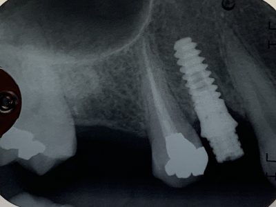 Minimally Invasive Dental Implant Placement