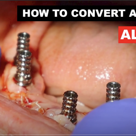 How to Convert All on X Denture